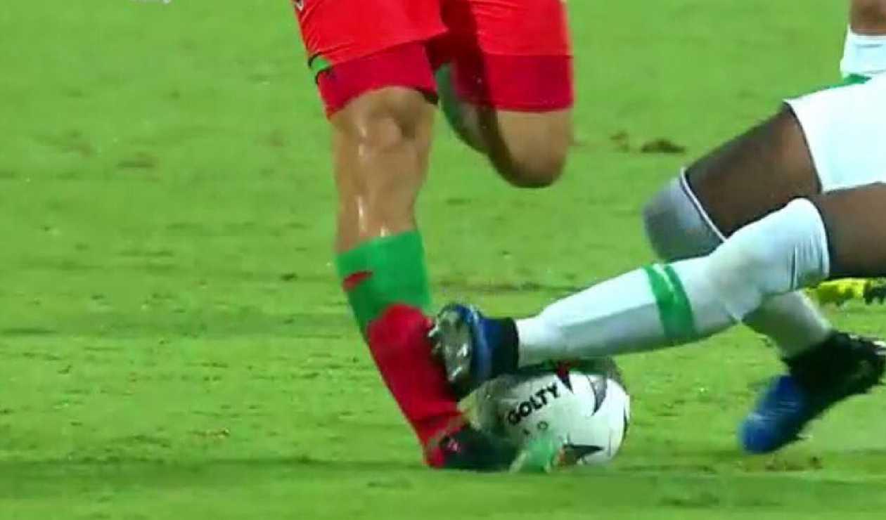 ¡Brutal patadón! Le rompieron la pierna a Brayan Fernández de Patriotas