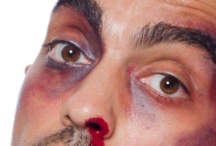 Hombre golpeado