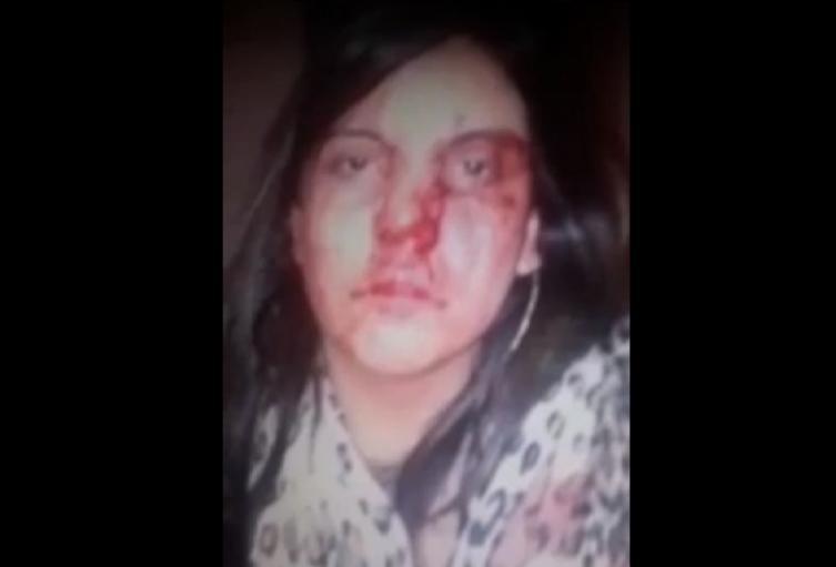 Mujer golpeada por su expareja, en Bogotá.