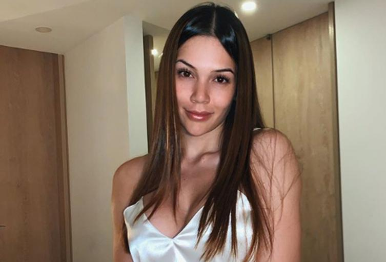 La modelo y actriz Lina Tejeiro fue también víctima de los biopolímeros.