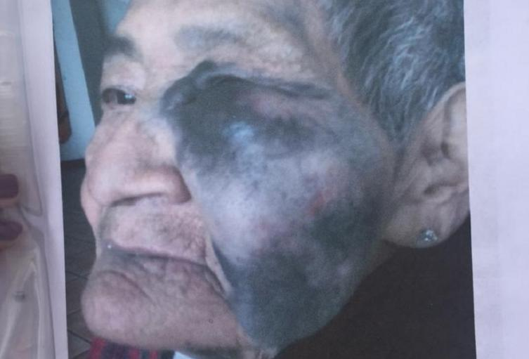 Abuela se cae en geriátrico