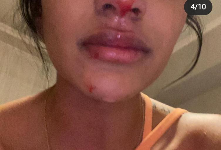 Daniela Cortés, maltratada por Sebastián Villa