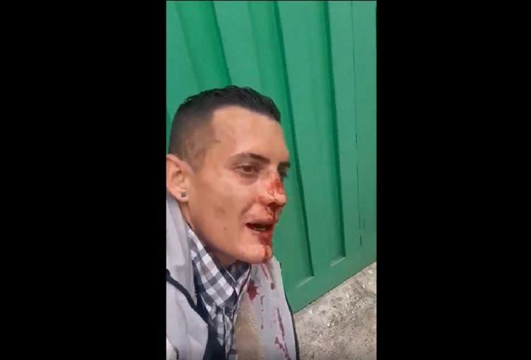 Le rompieron la nariz a ladrón de Suba