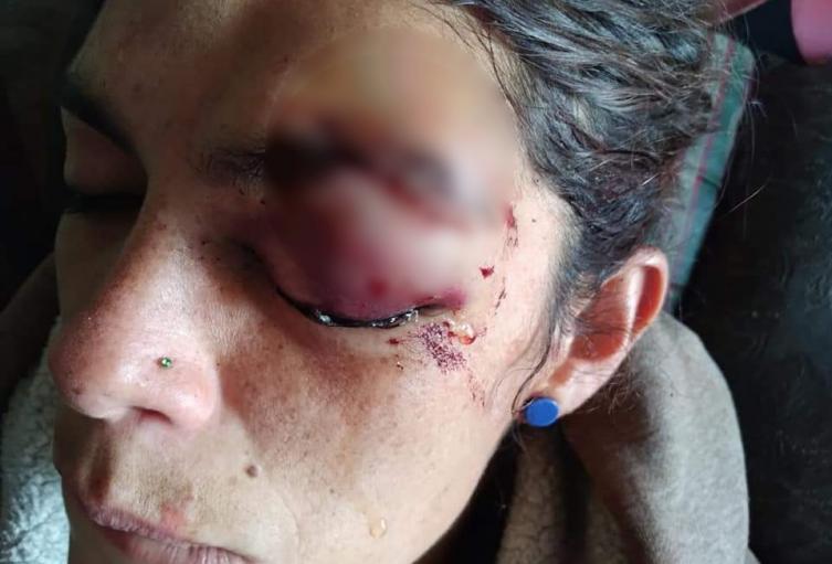 Mujer es agredida por acosador