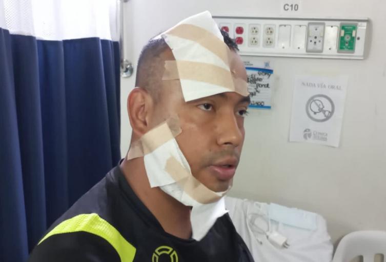 Patrullero de la Policía atacado con ácido en Ibagué.