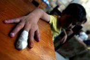 Cero casos de menores de edad quemados en el departamento de Cundinamarca durante Navidad.