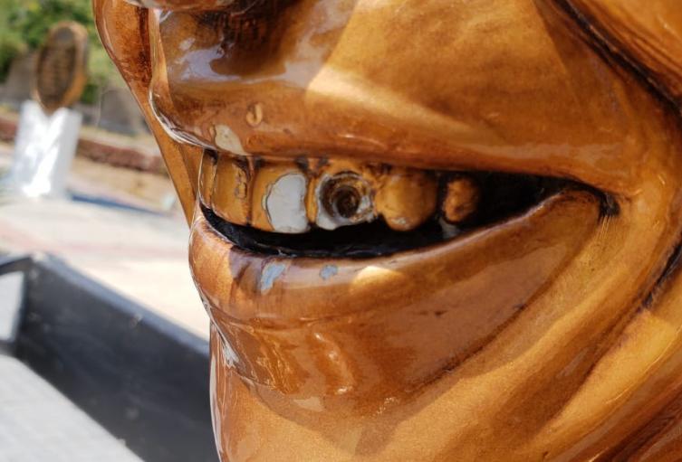 Le quitaron el falso diamante al diente de Diomedes díaz