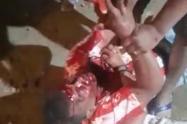 Arnaldo Valle víctima de las presuntas agresiones