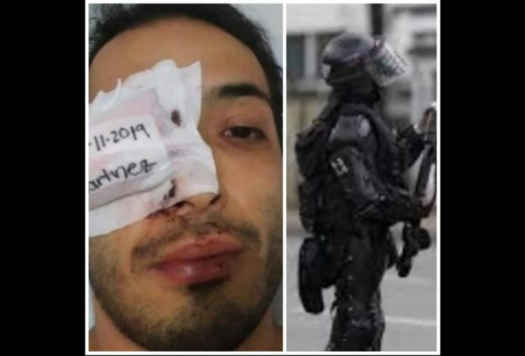 Policía investigará  sí el ESMAD estaría implicado en el presunto  abuso de autoridad