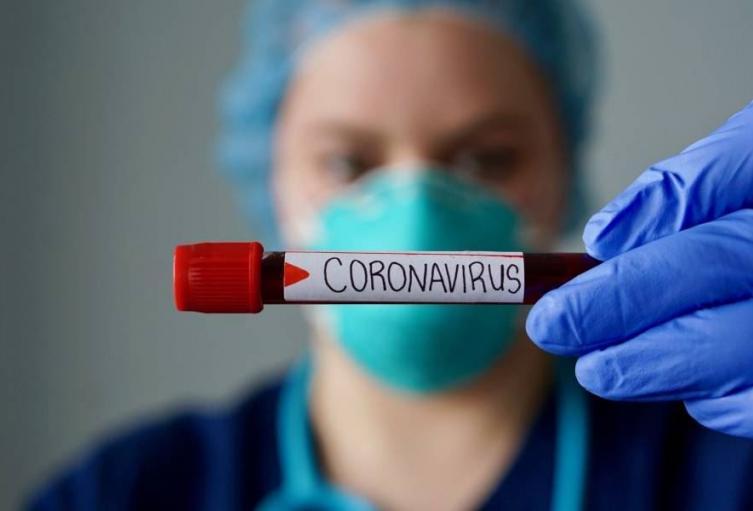 Antioquia reportó tres nuevos casos de COVID 19.