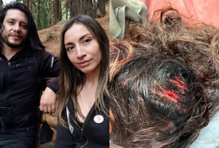 Delante de su hijo, celoso atacó con un hacha en la cabeza a su pareja