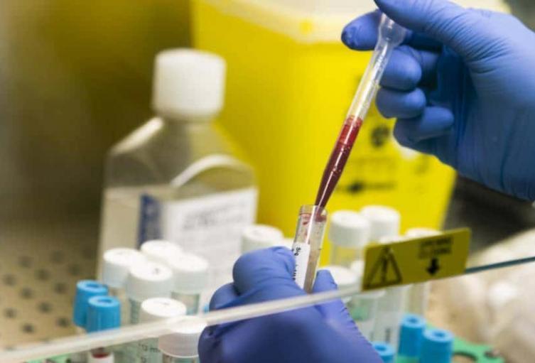 El país ascendió a 1.343.322 casos de coronavirus.