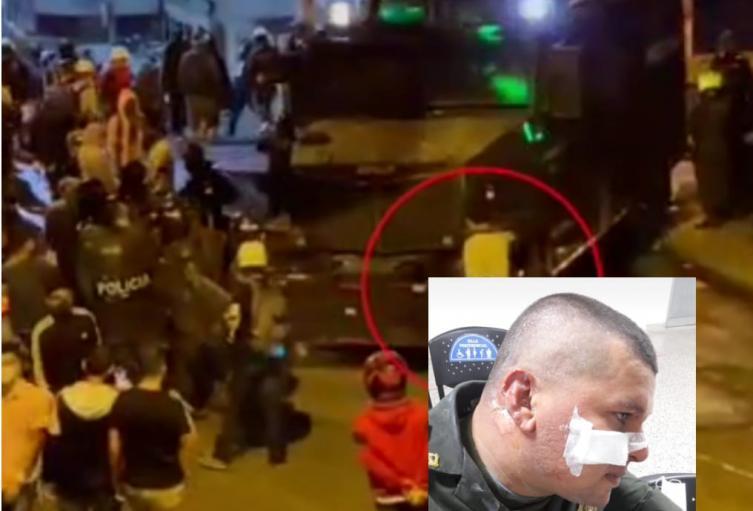 Una bomba molotov le quemó el rostro a un policía en Caldas, Antioquia