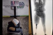 Sorprenden a viajero con una prótesis cargada de cocaína