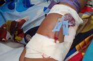 La madre del menor ya instauró la denuncia ante la Policía Metropolitana de Bucaramanga, la Fiscalía y el Bienestar Familiar, mientras que el plantel educativo aún guarda silencio frente al hecho.