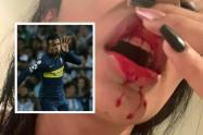 Acusan a Sebastián Villa de propinarle una fuerte golpiza a su pareja