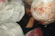 Hallan cadáver de un hombre con ocho puñaladas en Medellín