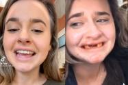 Tiktoker se rompe los dientes mientras graba un video tomando mimosas