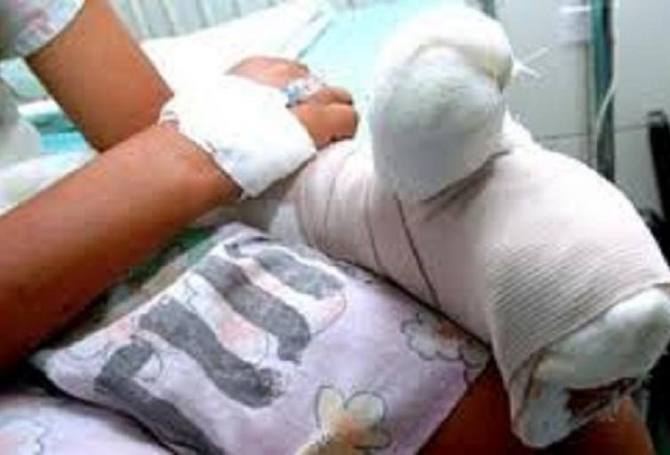 En el Tolima 34 Hombres y 4 mujeres han sufrido lesiones con pólvora, de los cuales 8 son menores de edad