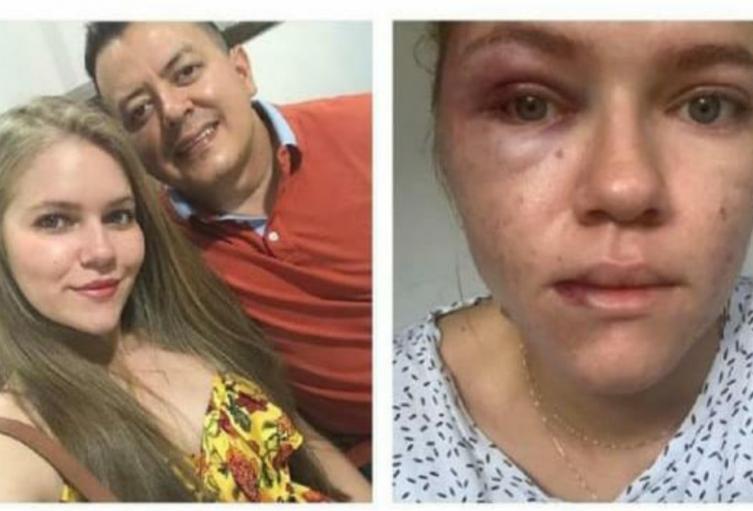 Johana Espejo señala al concejal Deiby Arias de haberla agredido