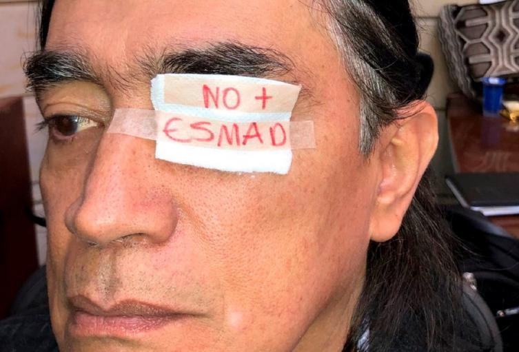 El senador Gustavo Bolívar repudió el ataque de la Fuerza Pública hacía el estudiante Esteban Mosquera de la Unicauca.