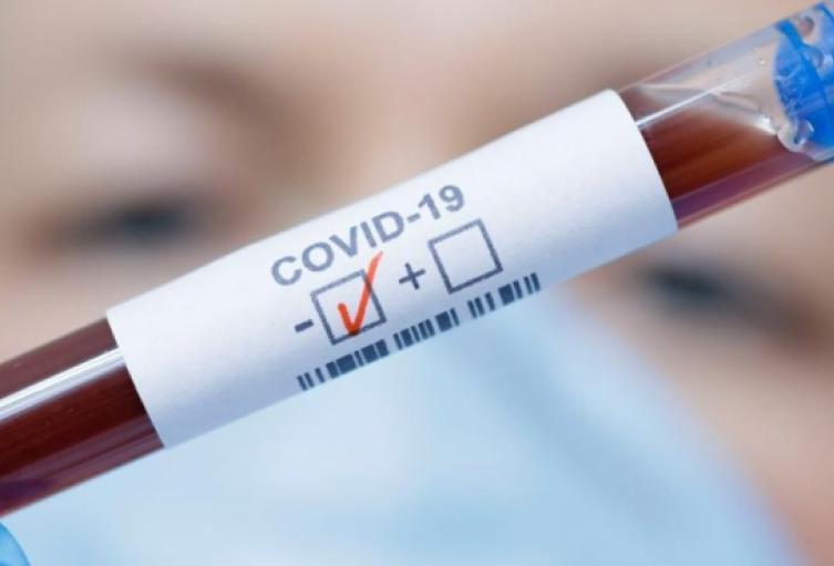 Desde que el nuevo Coronavirus SARS-COV-2 llegó al país, han muerto un total de 28.306 personas