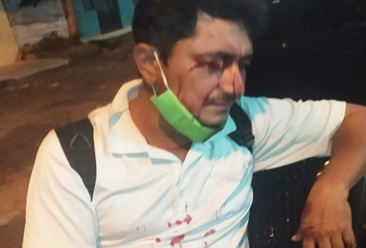 Adolescente lo hirió en el rostro al oponerse a un atraco en Las Américas de Ibagué