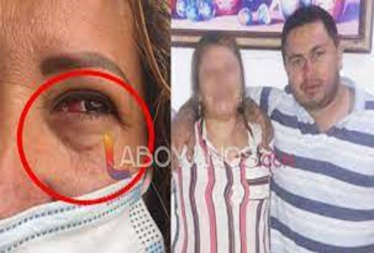 Hombre borracho golpeo a toda su familia y huyó del lugar