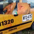 Se recupera un taxista que le dieron 'Pico de botella' en inmediaciones del Totumo
