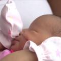 Bebé cortada en cesárea