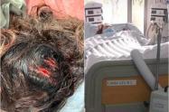 Delante del hijo de ella, hombre atacó con un hacha en la cabeza a su pareja en Bogotá