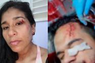 Turistas Tolimenses fueron atacados con cuchillo